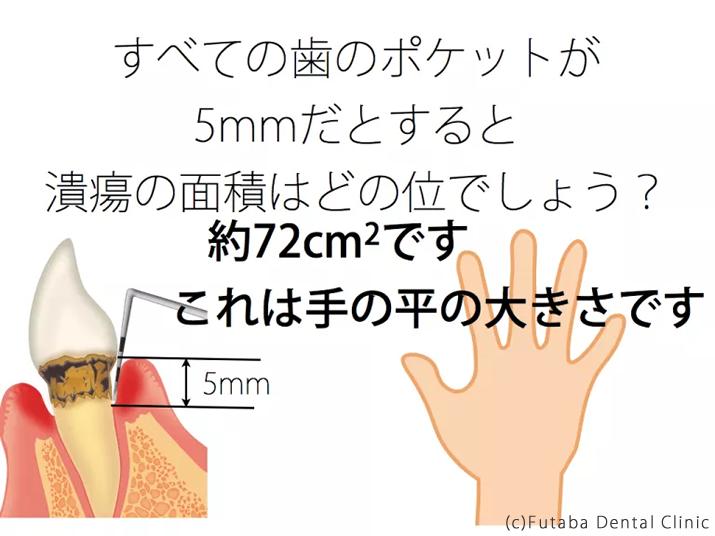 手の平 うんち.001