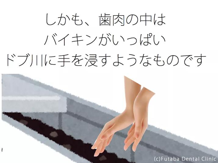 手の平 うんち.002