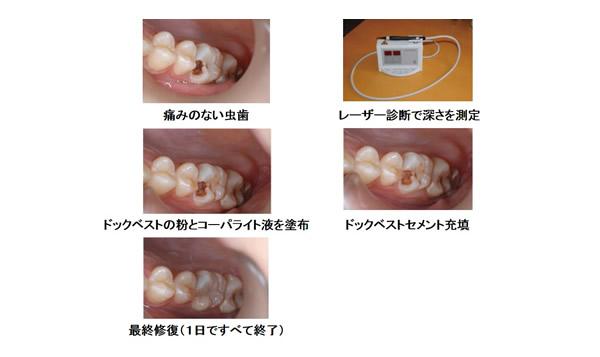 """最新医療 けずらない虫歯治療""""ド..."""