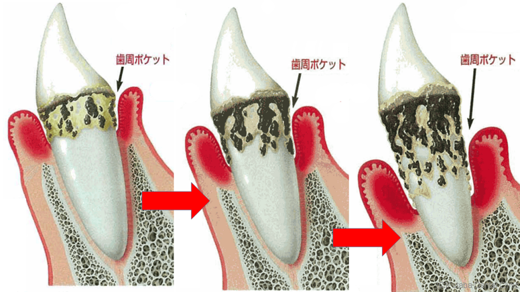 歯周炎の進行